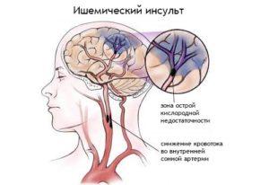 Восстановление после ишемического инсульта