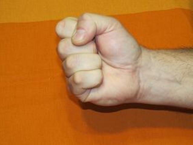 Восстановление руки после инсульта
