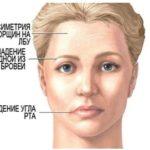Последствия геморрагического инсульта